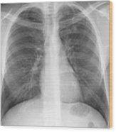Tuberculosis, X-ray Wood Print
