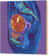 Uterine Fibroid, Mri Scan Wood Print