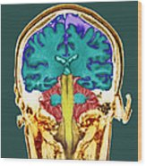 Healthy Brain, Mri Scan Wood Print