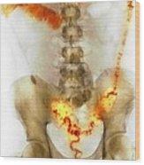 Ulcerative Colitis, X-ray Wood Print