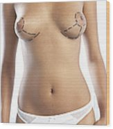 Cosmetic Breast Surgery Wood Print by Adam Gault