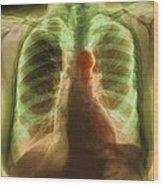 Aortic Aneurysm, X-ray Wood Print