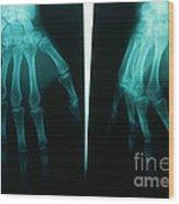Arthritic & Normal Hand Wood Print