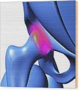 Arthritic Hip, Computer Artwork Wood Print