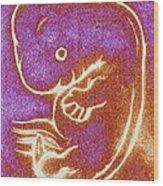 Artwork Of A Seven Week-old Embryo Wood Print