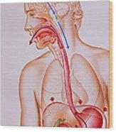 Artwork Of Vomiting Mechanism In Human Body Wood Print