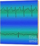 Atrial Fibrillation & Normal Heart Beat Wood Print