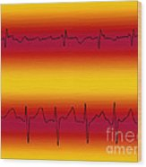 Atrial Flutter & Atrial Fibrillation Wood Print
