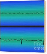 Atrial Flutter & Normal Heart Beat Wood Print