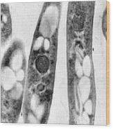Bacillus Anthracis, Tem Wood Print