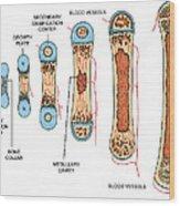 Bone Growth Wood Print by Science Source