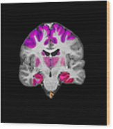 Brain Areas Affected By Alzheimers Wood Print