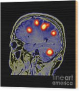 Brain Tumors Wood Print