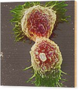 Breast Cancer Cells Wood Print