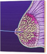 Breast Cancer Endoscope Wood Print by Volker Steger