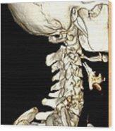 Broken Neck, 3d Ct Scan Wood Print