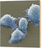 Cervical Cancer Cells, Sem Wood Print by Steve Gschmeissner