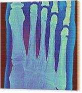Child's Foot, X-ray Wood Print