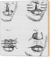 Cleft Lip Surgery, 1791 Wood Print