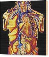Colour Artwork Of Abdominal & Thoracic Nerves Wood Print