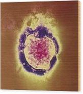 Coloured Tem Of The Measles Virus Wood Print by Nibsc