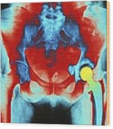 Coloured X-ray Of An Artificial Hip Joint Wood Print
