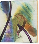 Coloured X-ray Of Gall Bladder During Endoscopy Wood Print