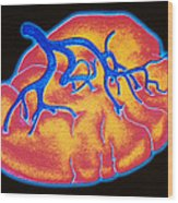 Computer Graphic Of Human Spleen With Its Artery Wood Print