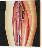 Deep Vein Thrombosis Wood Print