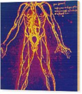 Drawing Of Human Venous System (leonardo Da Vinci) Wood Print