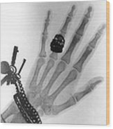 Early X-ray Photograph Of A Hand Taken In 1896 Wood Print