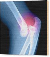 Elbow Injury Wood Print