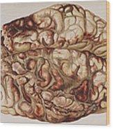 Encircling Gunshot-wound In Brain, 1898 Wood Print