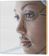 Facelift Surgery Markings Wood Print