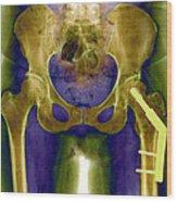 Fractured Femur Wood Print by Du Cane Medical Imaging Ltd