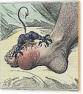 Gout, 18th-century Caricature Wood Print