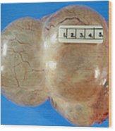 Gross Specimen Of A Simple Ovarian Cyst Wood Print