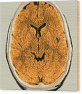 Healthy Brain, Ct Scan Wood Print