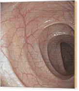 Healthy Colon, Large Intestine Wood Print by Gastrolab