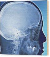 Healthy Skull, Coloured X-ray Wood Print