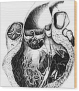 Heart Anatomy, Carl Von Rokitansky, 1875 Wood Print