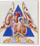 High Blood Pressure, Artwork Wood Print