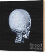 Human Skull Wood Print
