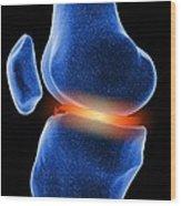 Inflamed Knee Cartilage, Computer Artwork Wood Print