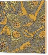 Keratinocyte Skin Cells, Light Micrograph Wood Print