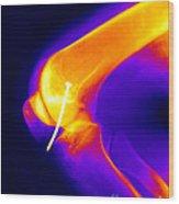 Knee X-ray Wood Print