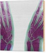 Marfan's Syndrome Wood Print