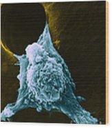Metastasis Wood Print