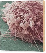 Migrating Breast Cancer Cell, Sem Wood Print