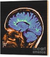 Mri Of Multiple Sclerosis Wood Print
